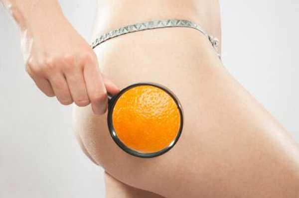 celulitida - pomerančová kůže